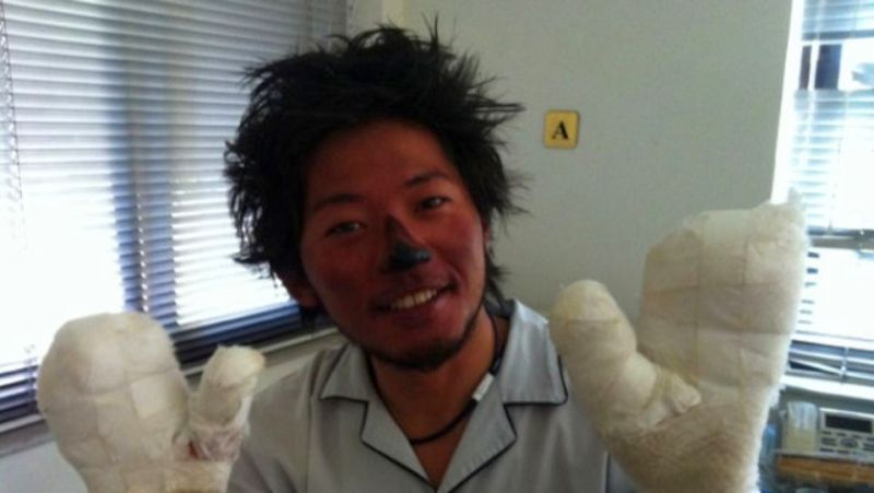 Nobkazu Kuriki , Japanese  climber who lost his nine fingers to forstbite in 2012